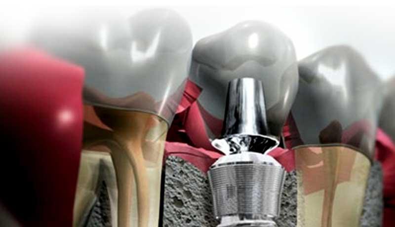 Especialização em Implantodontia – Paulo Feitosa