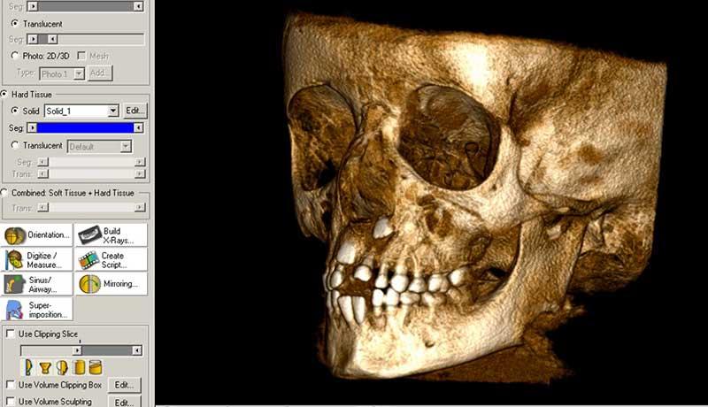 Especialização em Radiologia Odontológica e Imaginologia