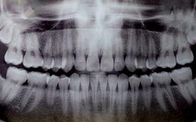 I Curso de Imersão em Tomografia Computadorizada para cirurgiões-dentistas