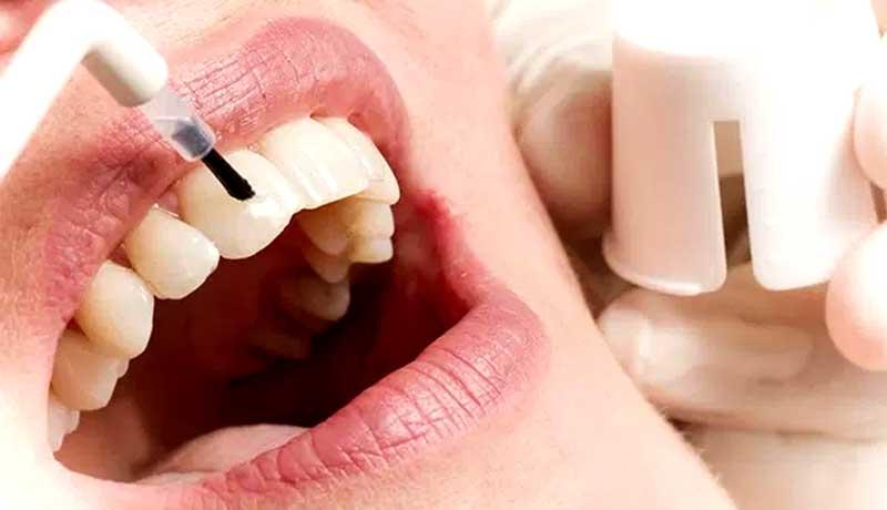 Odontologia Estética LAB