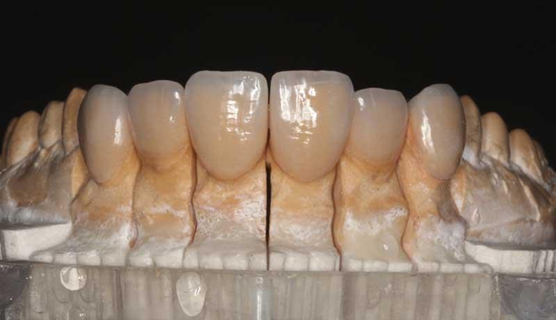 Residência em Reabilitação Oral