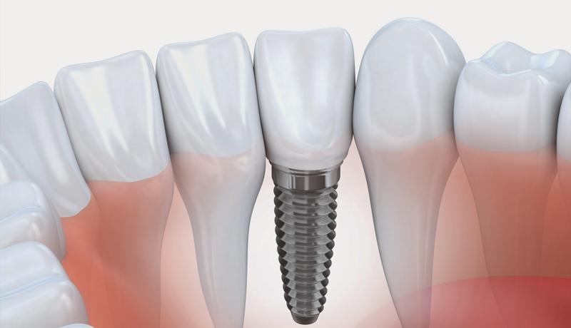 Atualização em Implantodontia Cirúrgica