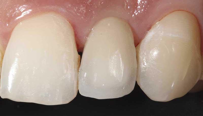 Especialização em Implantodontia