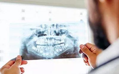 I Curso de Imersão em Tomografia Computadorizada para especialistas em Radiologia Odontológica